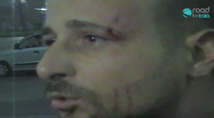 Napoli: Ragazzo manganellato senza alcun motivo dalla Polizia