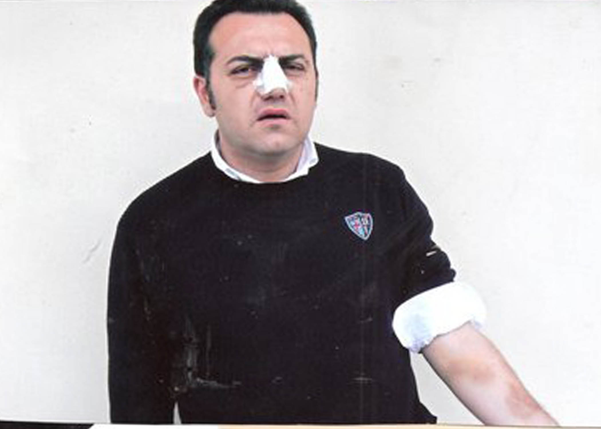 Roberto Della Ragione, io aggredito da un consigliere comunale di Bacoli