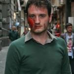 Stop Omofobia: ecco le foto del flash mob con uomini e donne coperti di lividi
