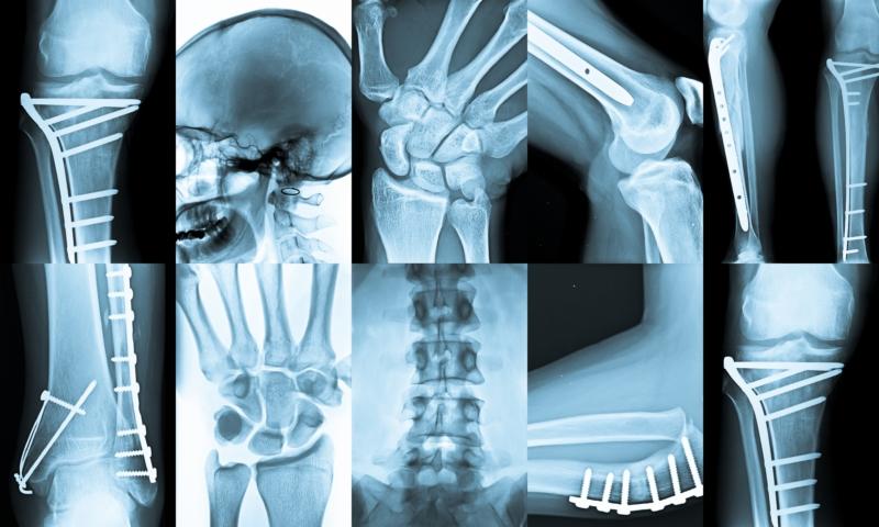 radiologia di Fuorigrotta riapre napoli