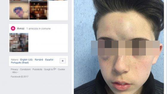 Bullismo: foto shock su Facebook con oltre 300mila condivisioni