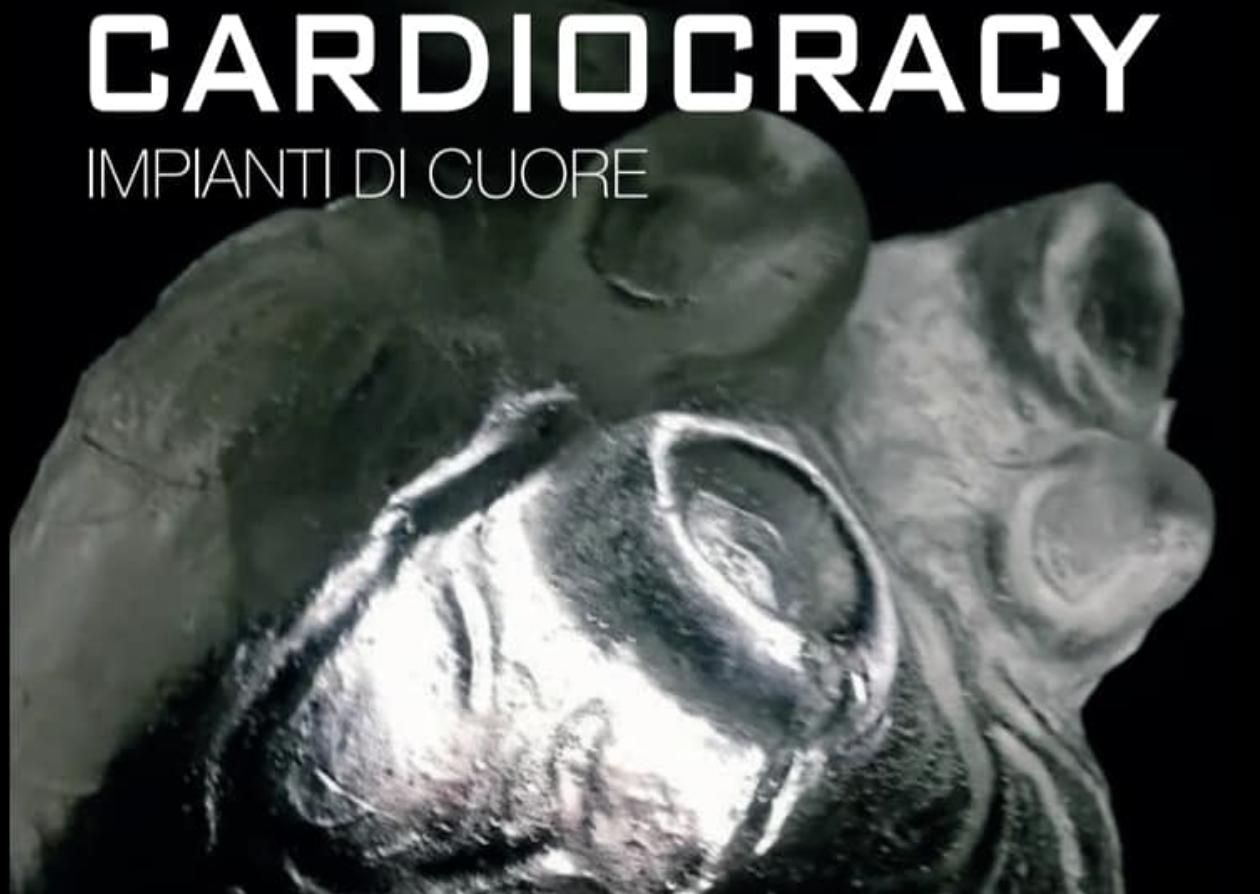 Cardiocracy