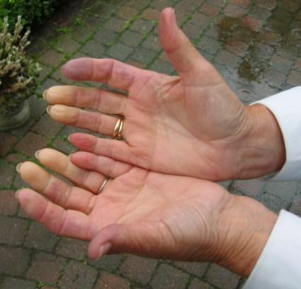 Mani fredde? Dita viola? Non sottovalutate questi sintomi, potreste aver bisogno di un controllo...