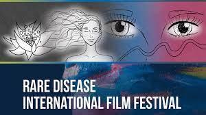 """""""Uno sguardo raro"""", rare disease International festival VI edizione presso la Casa del Cinema di Roma"""